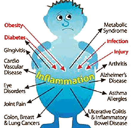Inflamation
